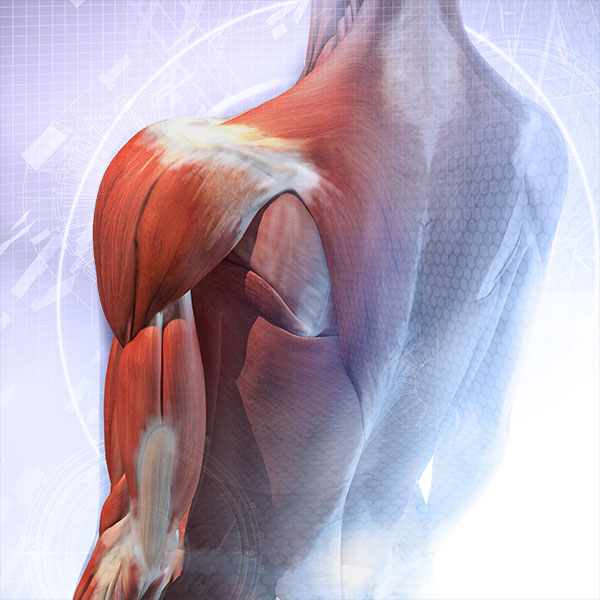 Osteonecrosis - Bone, Joint, and Muscle Disorders - Merck